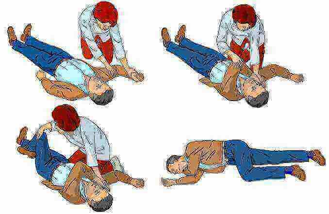 passos a seguir per posar una víctima que respira, però està inconscient en posició de recuperació