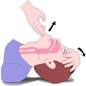 Maniobra front-mentó per determinar si víctima respira